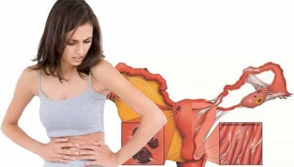 Стрептококковая инфекция в гинекологии симптомы лечение
