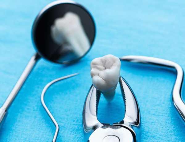 Общая стоимость имплантации зуба - Из чего состоит цена имплантации?