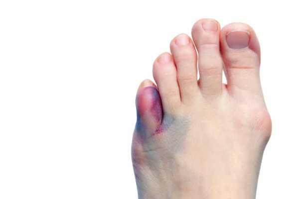 Как определить перелом пальца на ноге или ушиб
