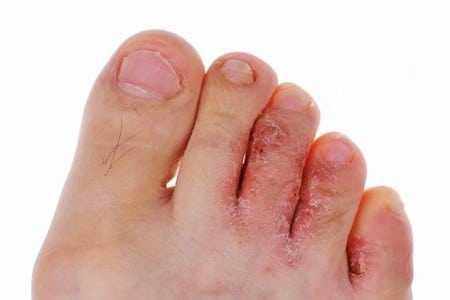 Температура и красные пятна на ногах