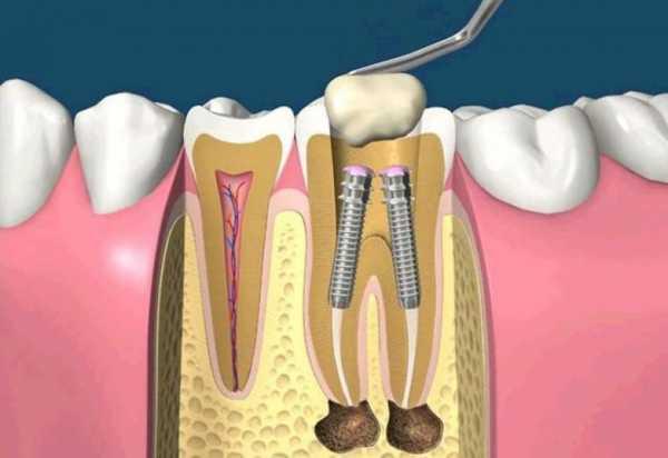 Имплантация на два зуба