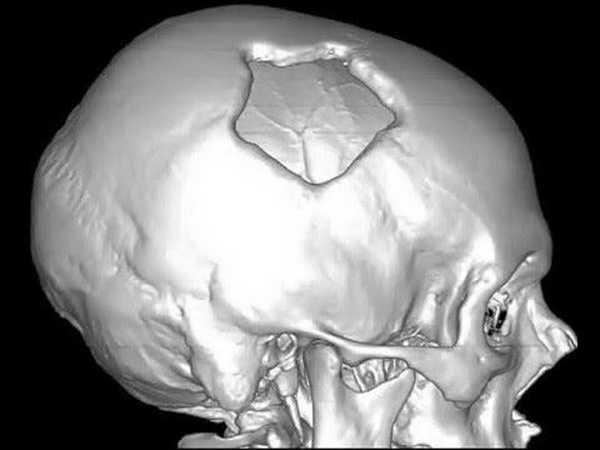 Перелом свода черепа. Перелом свода черепа – серьёзное повреждение, требующее незамедлительной квалифицированной помощи