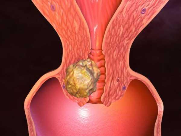 Как влияет химиотерапия на организм онкологического больного?