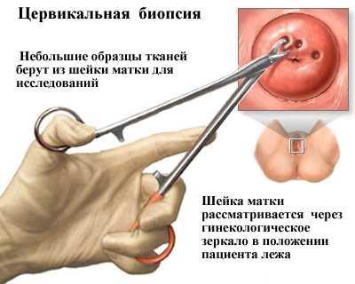 Рак матки и рак шейки матки 2 стадии: особенности патологии