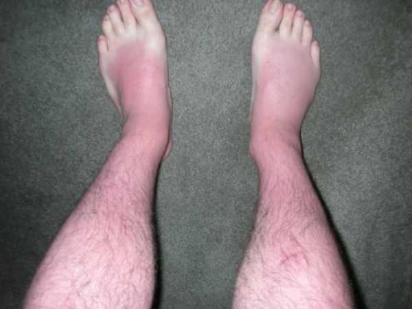 Причина сильнвх отеков ног