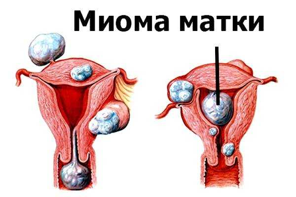 Лечебные свойства прополиса в гинекологии