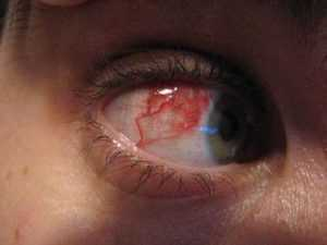 Патологии глазного дна: расширение и сужение сосудов глаза